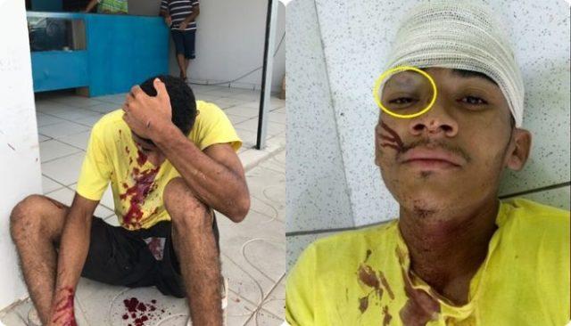 Suspeito é agredido por populares após roubar shampoo no Piauí