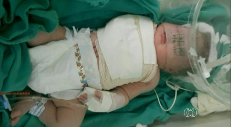 Bebê tem braço e clavícula quebrados durante parto em hospital
