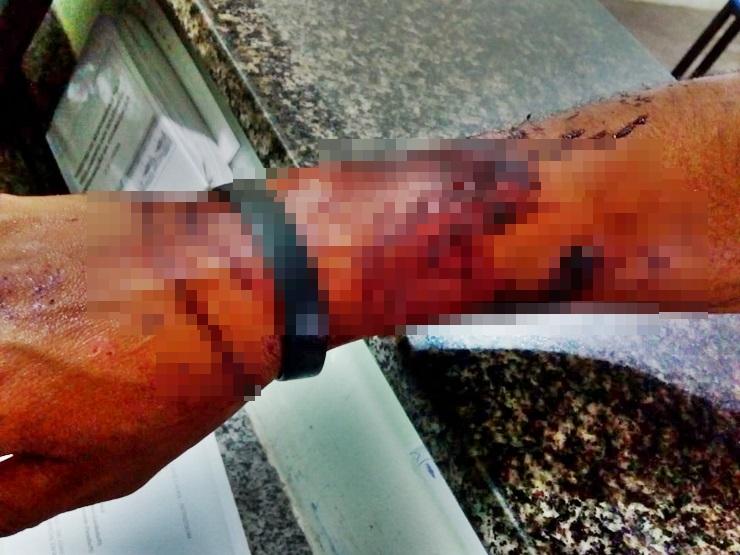 Homem é baleado em tentativa de assalto no Piauí