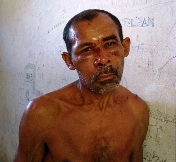 Homem é preso após decepar braço de criança com facão no Piauí
