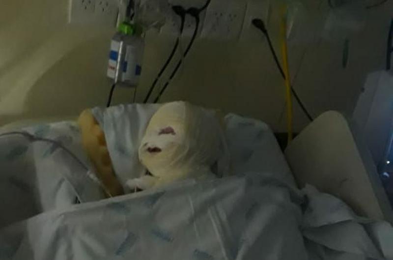 Explosão durante cirurgia queima rosto de bebê em hospital de BH