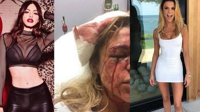 Ex de Biel é acusada de agredir amiga do funkeiro com uma garrafa
