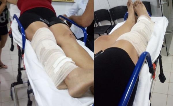 Mulher quebra a perna após tentar fugir de criminosos em Agricolândia