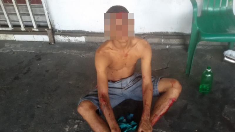 Suspeito de assalto é atropelado após perseguição policial em Teresina