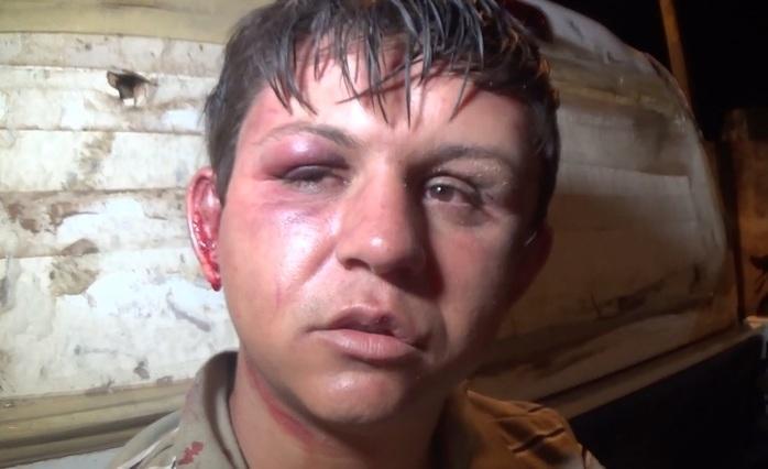Homem sofre tentativa de linchamento na zona sul de Teresina