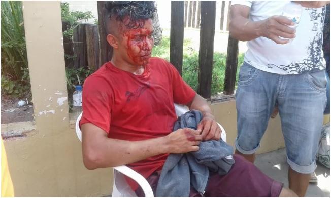Estudante é agredido a pedrada quando ia fazer prova do Enem