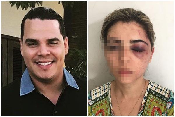 Homem espanca ex-mulher, paga fiança e é liberado