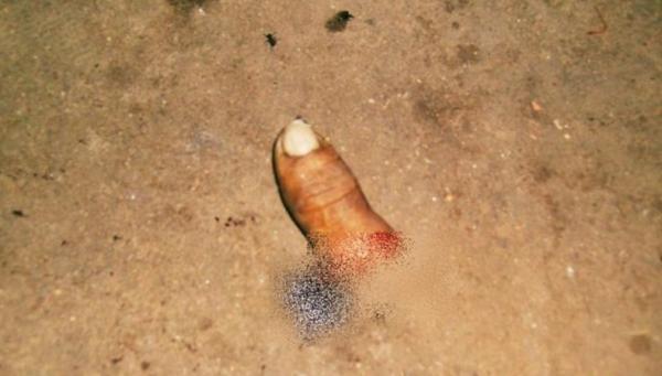 Homem tem dedo decepado após tentativa de assalto em Esperantina