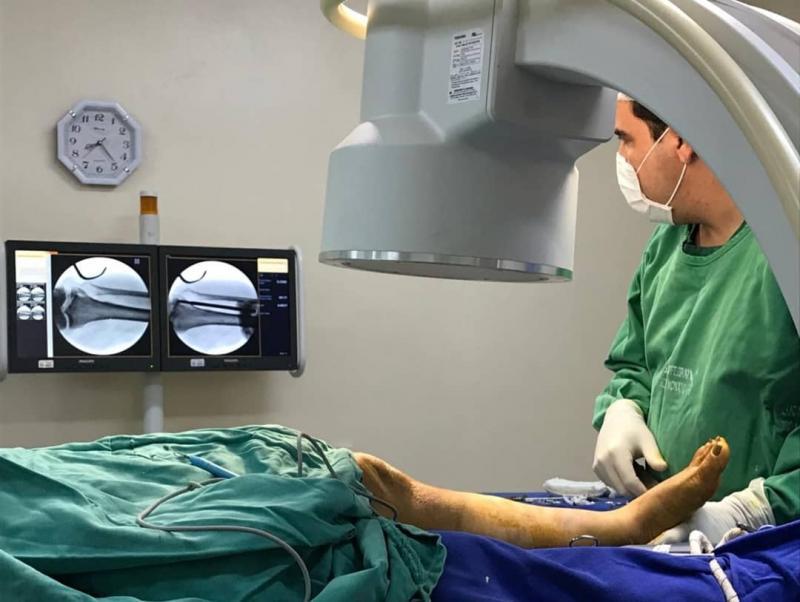 Cirurgias ortopédicas são realizadas no Hospital Regional de S.R.Nonato