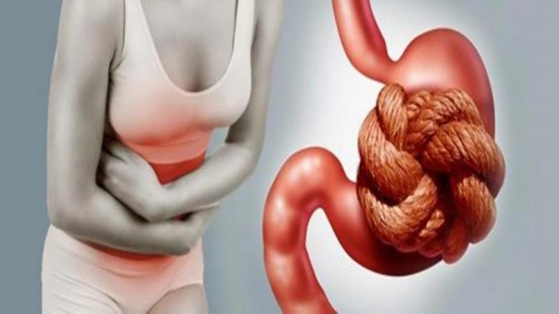 O que é constipação intestinal e como a alimentação pode ajudar você