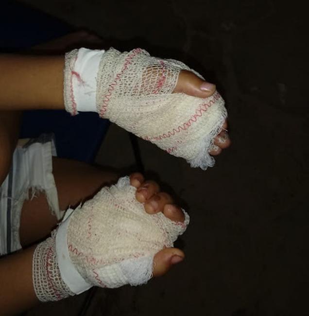 Mãe é presa após torturar filho de 4 anos com frigideira quente no MA