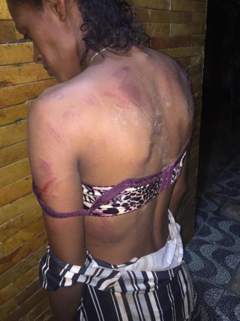 Homem é preso por agredir mulher com facão no Piauí