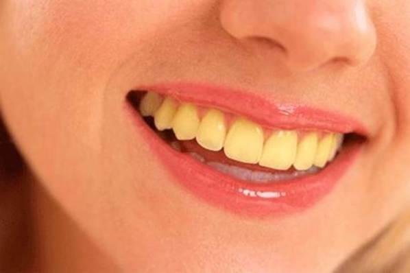 Entenda por que os dentes se tornam amarelos