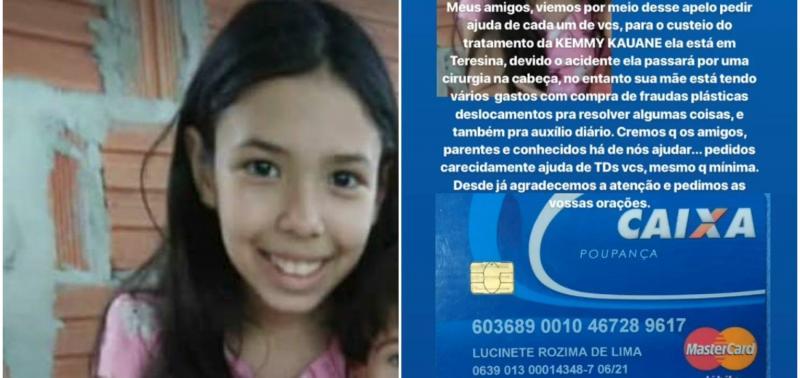 Família realiza campanha para menina de 10 anos que sofreu acidente