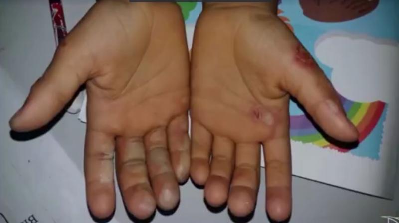 Criança de 6 anos tem as mãos queimadas após pegar dinheiro da mãe