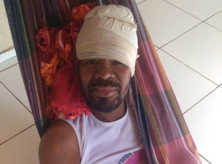 Jubileu recebe alta médica e encontra-se em recuperação