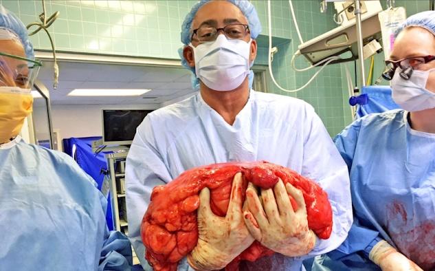 A barriga de cerveja deste homem era, na realidade, um enorme tumor