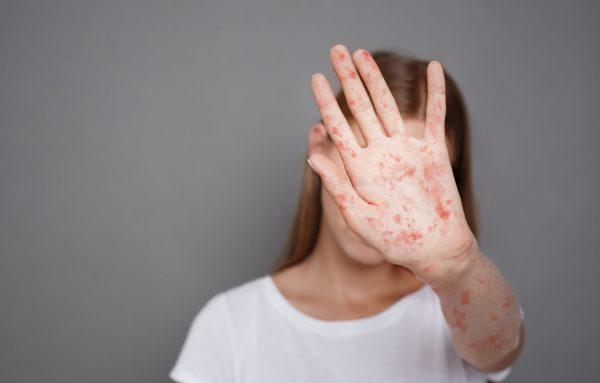 OMS alerta para avanço preocupante do sarampo na Europa