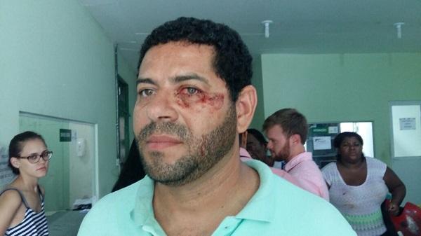 Cinegrafista de filiada da TV Globo é agredido no Piauí