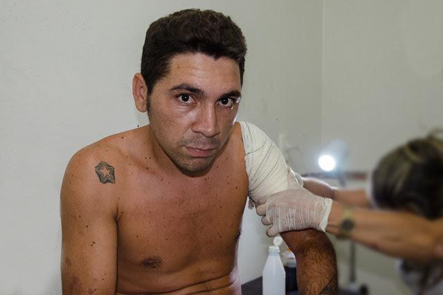 Jovem de 21 anos sofre tentativa de homicídio em Cocal
