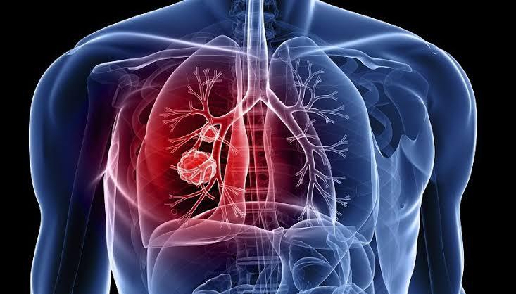 Estudo revela compostos que podem combater a tuberculose