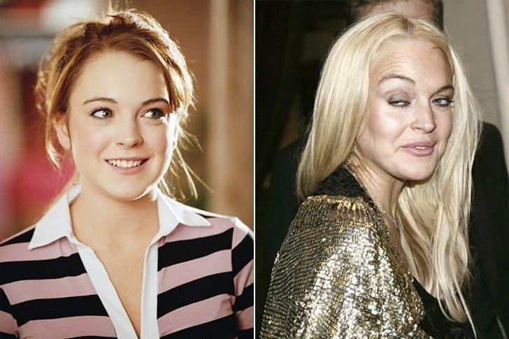 Confira o antes e depois surpreendente das celebridades