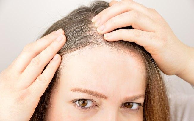 Por que os jovens têm cabelos brancos? Entenda o motivo