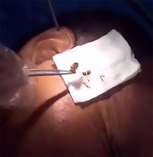 Médico encontra barata viva na orelha de paciente