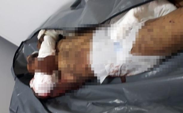 Homem invade casa e morre ao ser atacado por Pitbuls em Coroatá