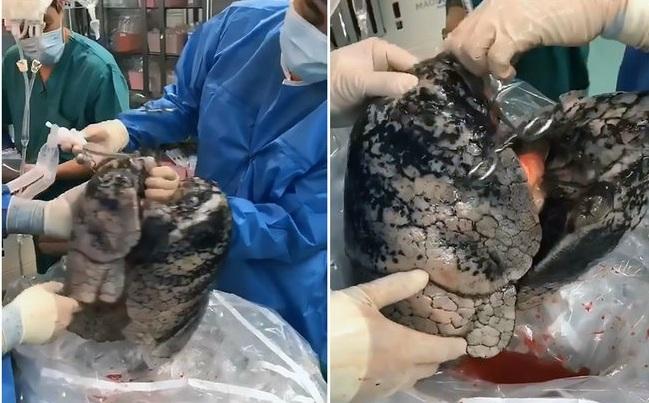 Chocante! Veja fotos do pulmão de um homem que fumou por 30 anos