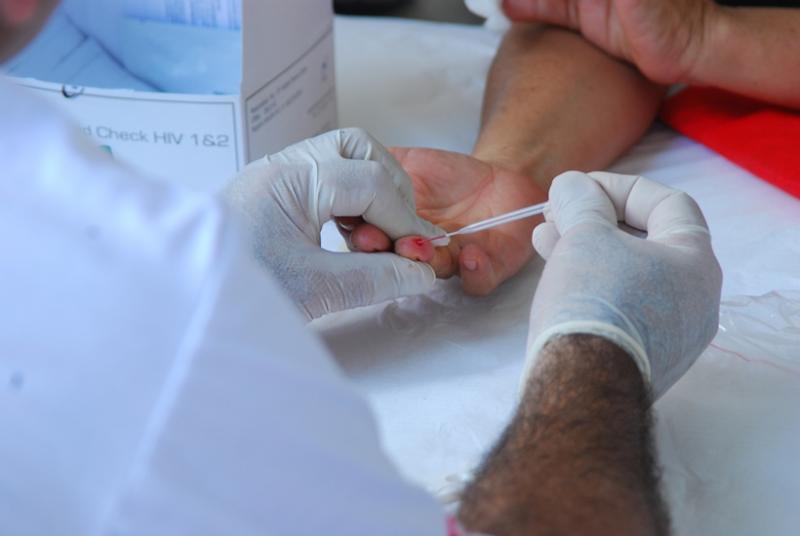 Teresina registra 448 novos casos de HIV/AIDS