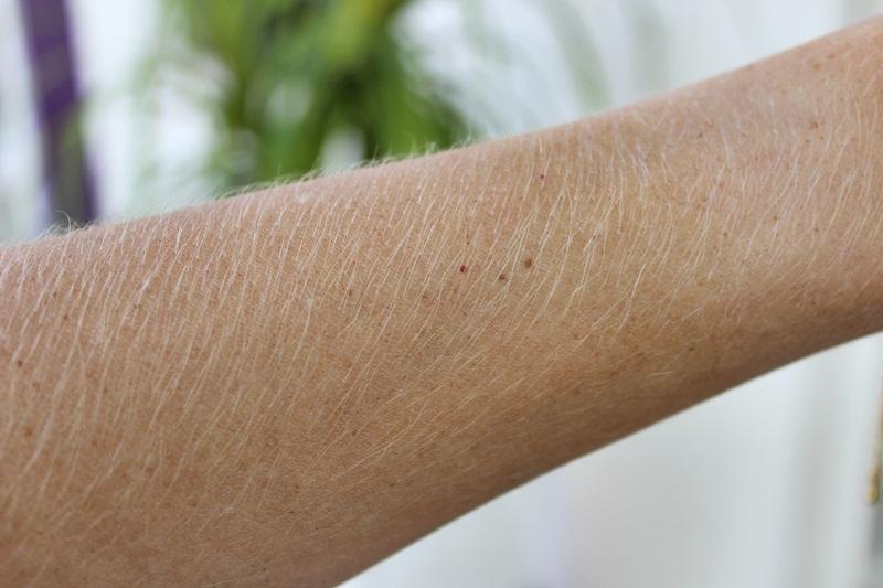 Descolorir os pelos do corpo faz mal? Veja cuidados para não ferir a pele