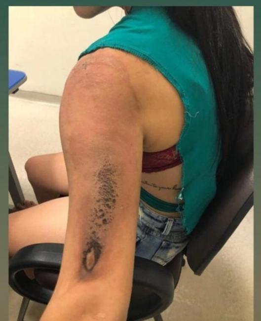 Boate de Teresina é multada em R$ 5,8 mil após jovem sofrer queimaduras