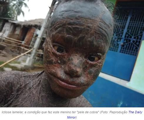Ictiose lamelar, a doença que faz este menino ter 'pele de cobra'