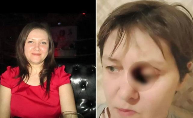 Doença misteriosa devora rosto de mulher aos poucos; veja!