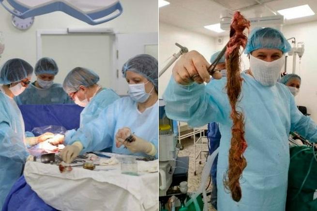 Impressionante! Mulher tem bola de cabelo gigante retirada do ovário