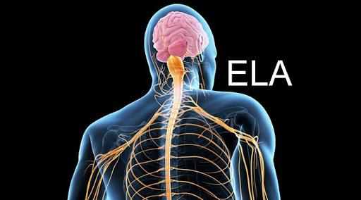 Mais tentativas e novas esperanças: a ELA não é fácil