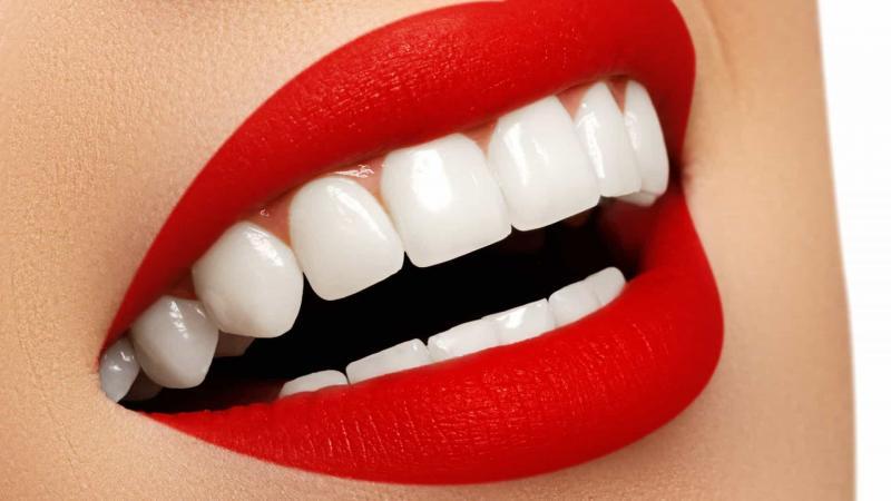 Dentista dá três dicas para ter os dentes perfeitos