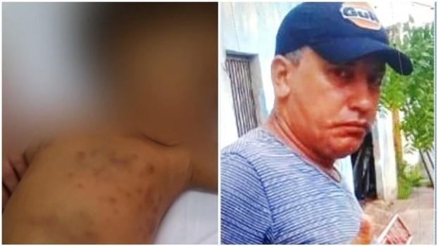 Padrasto é acusado de estuprar e mãe de espancar menina de 2 anos no MA