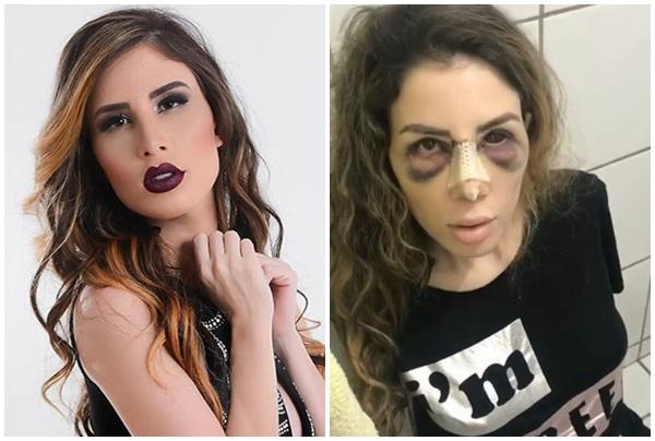 Apos cirurgia plástica, caso de youtuber piora e empresário pede para ela não morrer