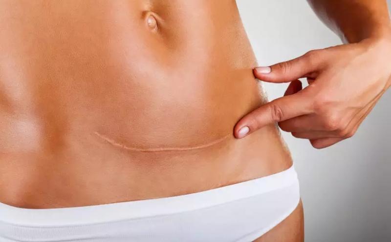 4 dicas poderosas para cuidar e reduzir a cicatriz da cesárea