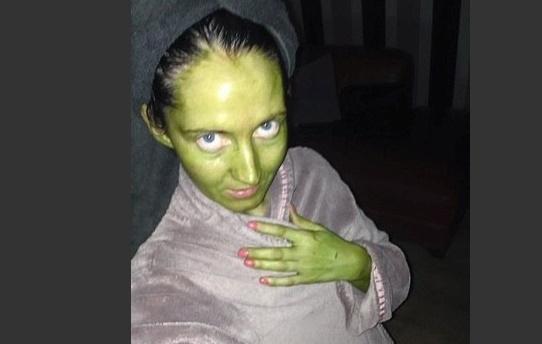Mulher acorda com a cara verde após usar bronzeador falsificado