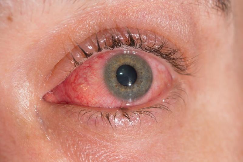 Conjuntivite pode ser sintoma da Covid-19 em casos graves