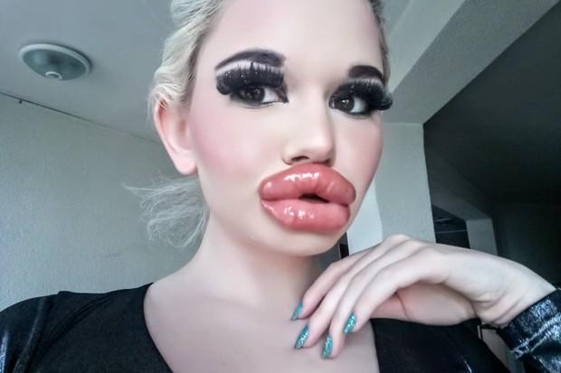 Jovem faz 20º preenchimento labial para virar 'Barbie humana'
