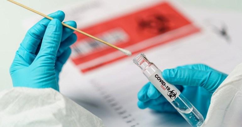 Teresina registra 85 novos casos e mais de 2 mil infectados
