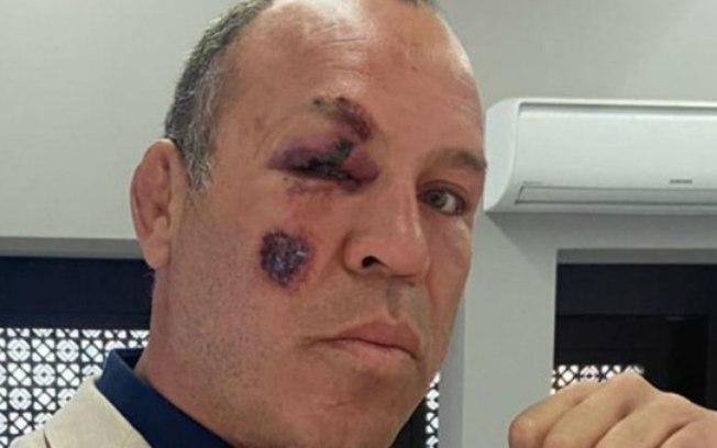 Wanderlei Silva é atropelado e tem escoriação no rosto