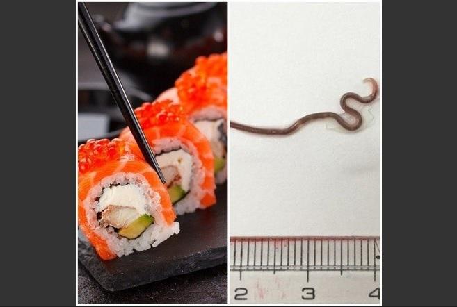 Verme se aloja na garganta de mulher após ela comer sushi