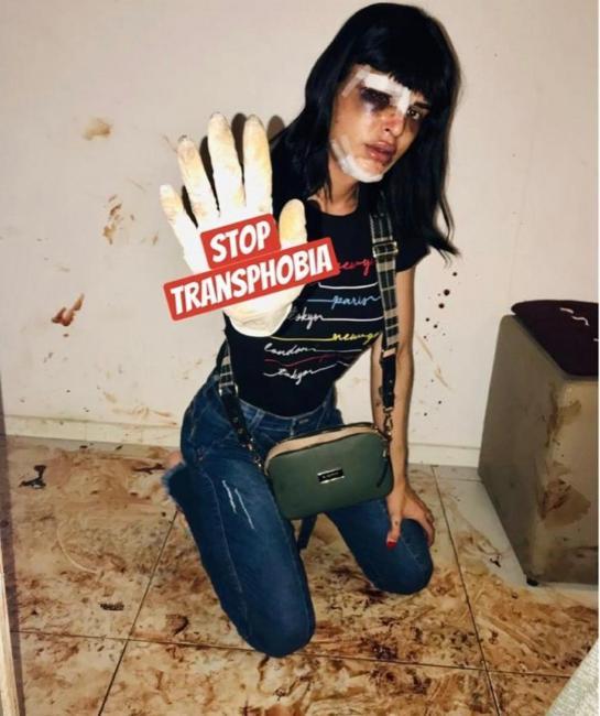 Mulher trans é agredida dentro de seu apartamento