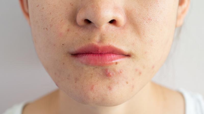 Guia completo para tratar acne na gravidez e evitar manchas