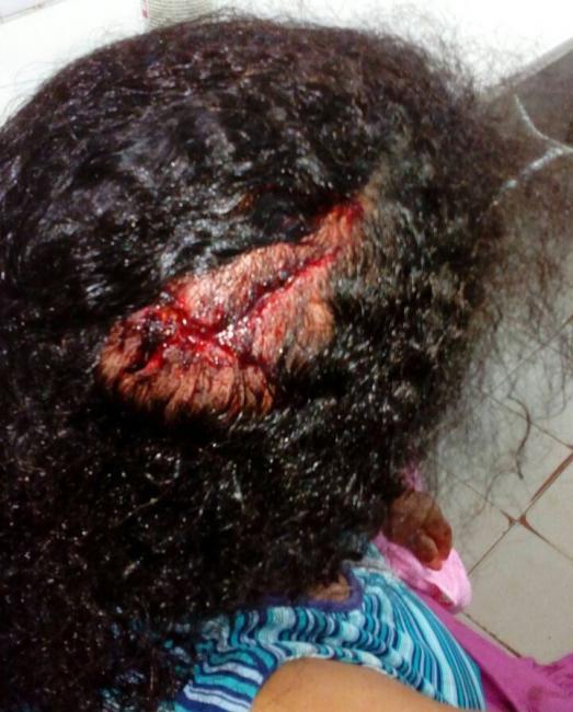 Em Agricolândia, idosa é agredida a golpes de faca